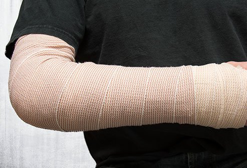 A splint is a rigid device used to stabilize broken bones or dislocated joints. Often a splint is temporarily applied in an emergency as a stopgap measure until a doctor can set the bone properly.