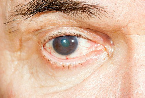 Ectropion of the eyelid is an outward bending or turning of the eyelid margin