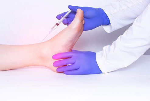 Ankle arthrocentesis is the drainage by needle of fluid inside the ankle joint.
