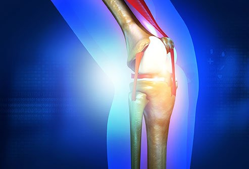 Osteochondral grafting treats conditions in which there is cartilage damage and the underlying bone is exposed.