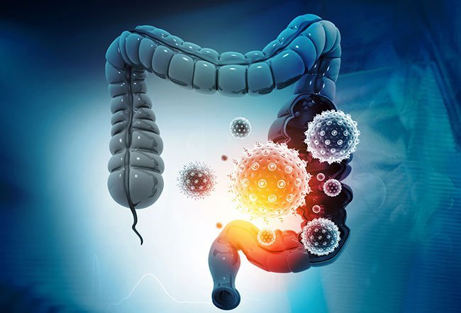 Bowel cancer may manifest in many different ways: