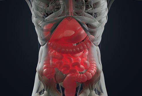 Ulcerative colitis is a chronic condition that causes ulcers in the colon (large intestine), and symptoms such as diarrhea and bleeding. People with ulcerative colitis can usually expect the same life expectancy as people without ulcerative colitis as long as they manage the disease.