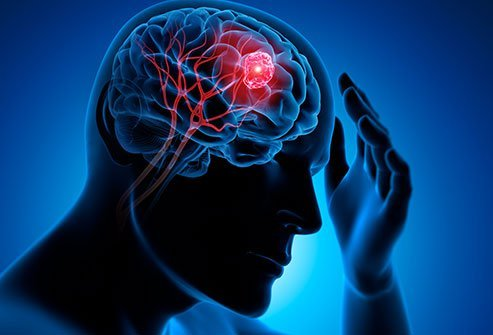 First signs and symptoms of a brain tumor may be severe headaches and seizures.