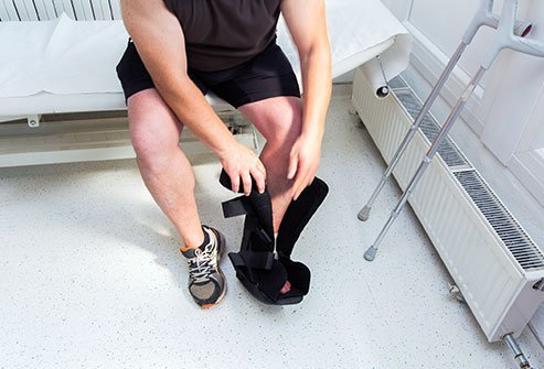 An ankle splint is used to support the foot and ankle if you have a sprain, fracture, or dislocation. Your ability to walk with an ankle splint depends on your injury and your doctor's recommendations.