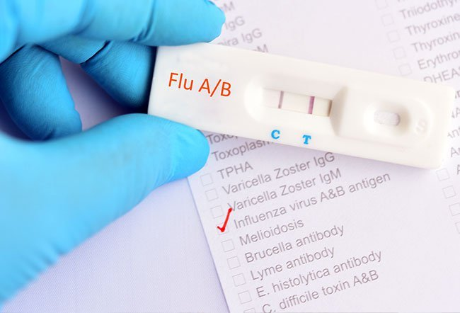 Flu or influenza is a contagious (spreads from person to person) viral illness that affects the respiratory tract (the nose, throat and lungs). Type A influenza is generally considered worse than type B influenza.