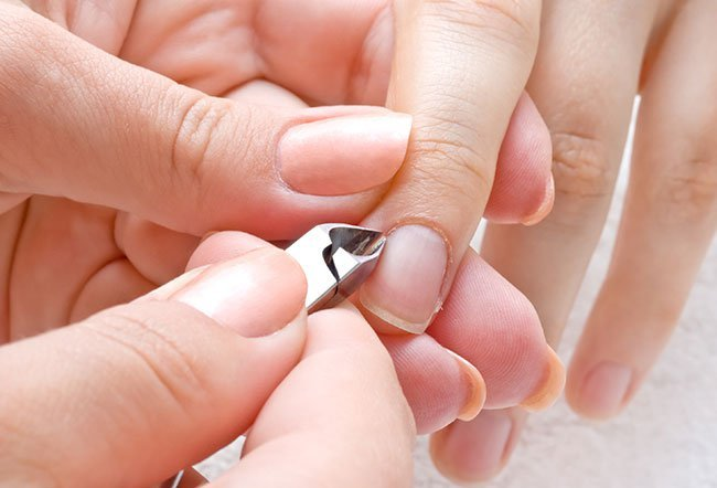Hangnails are often seen at the end of a digit near the nail.