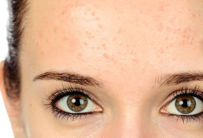 Forehead pimples are usually caused because blocked pores on your skin. Your forehead tends to be an area where the skin gets naturally oily from it's own skin oils, oil from your hair, or skincare products that block your pores.