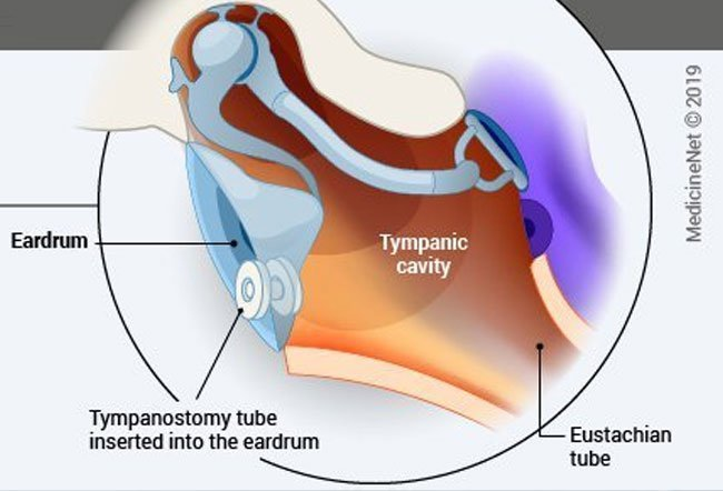 A myringotomy is a surgical procedure in which a small incision (cut) is made on the eardrum to remove any accumulated fluid, blood, or pus from the middle ear.