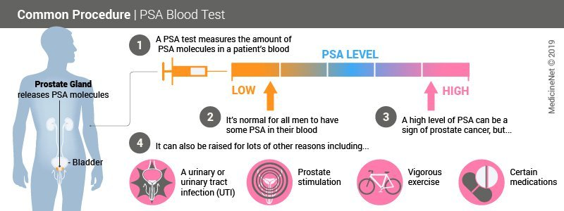 Prostate Specific Antigen (PSA) Test, Results, Levels & Ranges