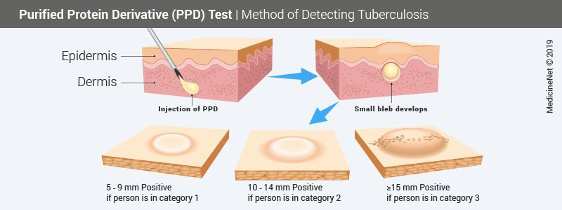Purified Protein Derivative (PPD) Procedure for detecting TB