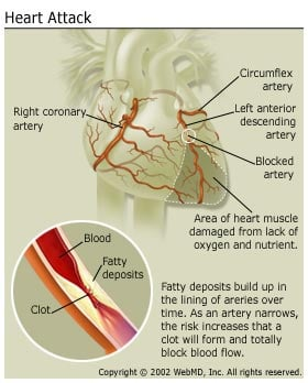 heart attack myocardial infarction overview on com heart attack when the plaque s hard outer shell cracks plaque rupture platelets disc shaped particles in the blood that aid clotting come to the area