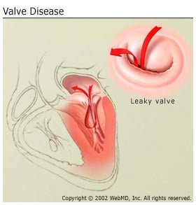 Order sexual health leaflets of the heart