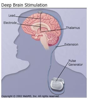 Picture of Deep Brain Stimulation