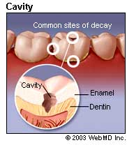 Picture of cavities
