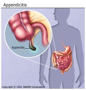 Appendicitis Causes, Symptoms, Diagnosis, and Treatment on ...