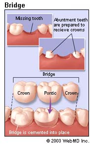 Picture of a dental bridge
