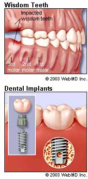 Wisdom Teeth and Dental Implants