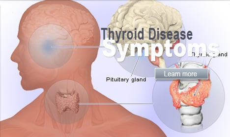 Thyroid Disease Symptoms