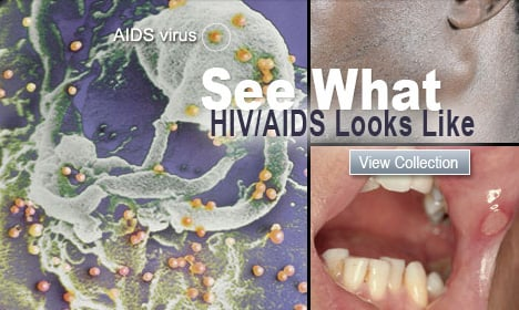 See What HIV/AIDS Looks Like