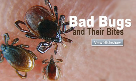 Bad Bugs and Their Bites