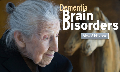 Dementia Brain Disorders