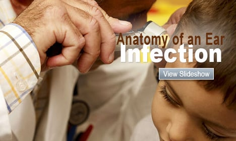 Anatomy of an Ear Infection