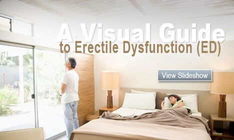 A Visual Guide to Erectile Dysfunction (ED)