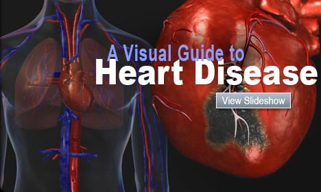 A Visual Guide to Heart Disease