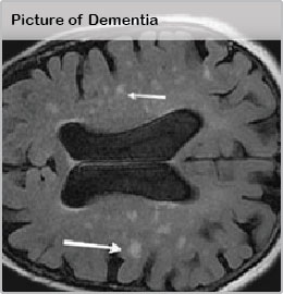 Picture of Dementia