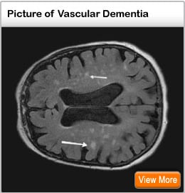 Picture of vascular dementia