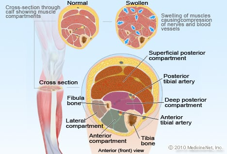 Compartment Syndrome Illustration