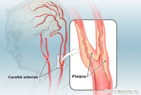 Carotid Arteries Disease Illustration