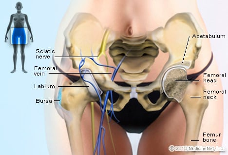 Hip Picture Image On Medicinenet
