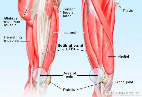 Iliotibial Band (ITB) Picture Image on MedicineNet.com