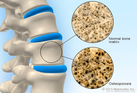 Osteoporosis Treatment & Management
