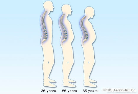 Picture of Osteoporosis Progression