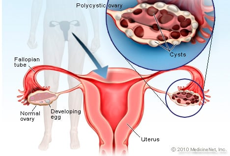 Polycystic Ovary Syndrome Picture Image On Medicinenet
