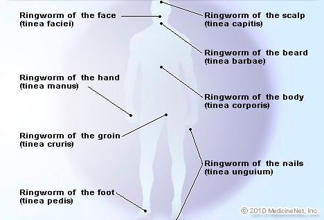 Types of Ringworm Illustration