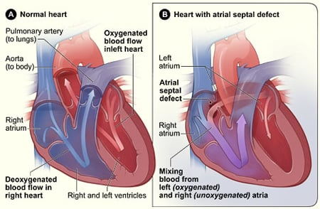 Picture of Atrial Septal Defect