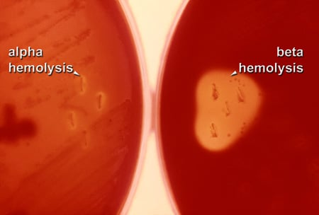 Image of beta hemolysis.