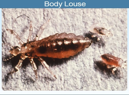 Photo of a body louse and larvae