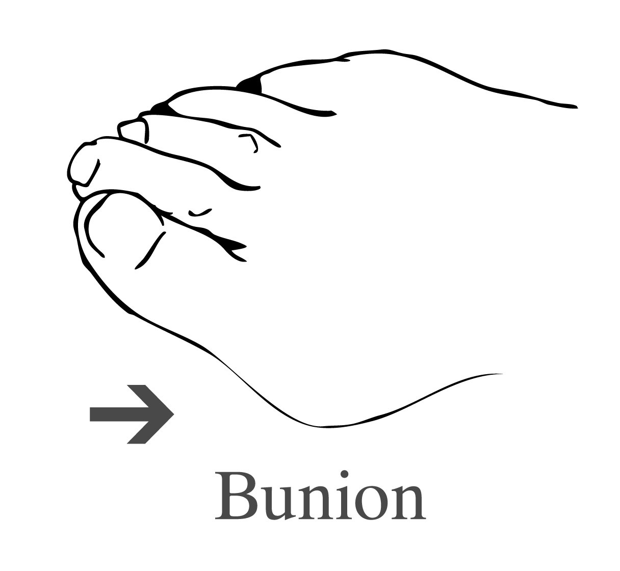 Picture of a bunion.