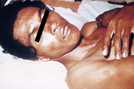 Picture of patient with washer woman hands (loss of skin elasticity), a sign of cholera.