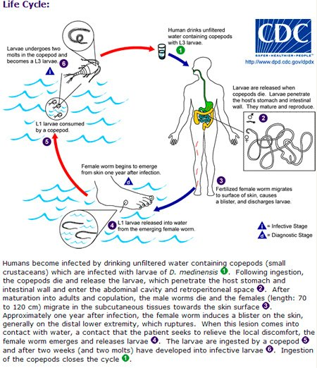 Life cycle of Dracunculus medinensis (Guinea worm disease)
