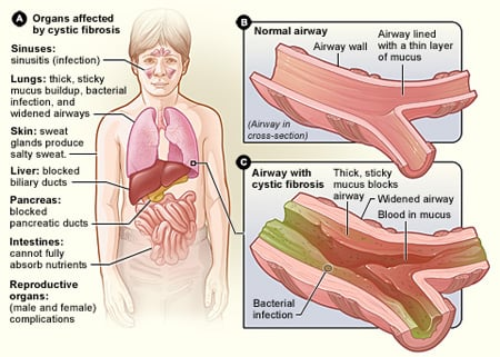 Copd Nature Review