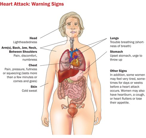 Picture of a woman's body showing how a heart attack affects the body,