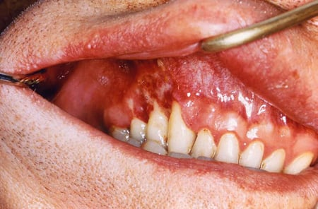 Picture of oral lesion (mouth ulcer) in patient with severe histoplasmosis