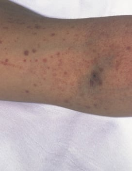 Picture of Idiopathic Thrombocytopenic Purpura (ITP)