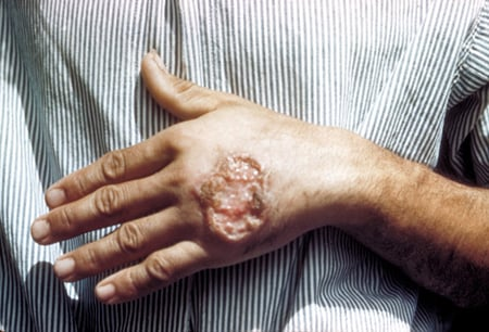 Picture of a skin ulcer due to leishmaniasis, hand of Central American adult.