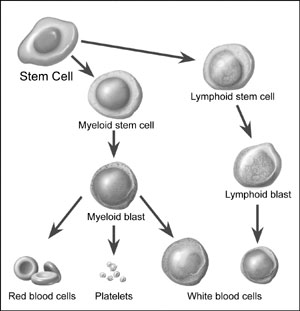Leukemia Symptoms, Causes, Treatment - What is leukemia on MedicineNet